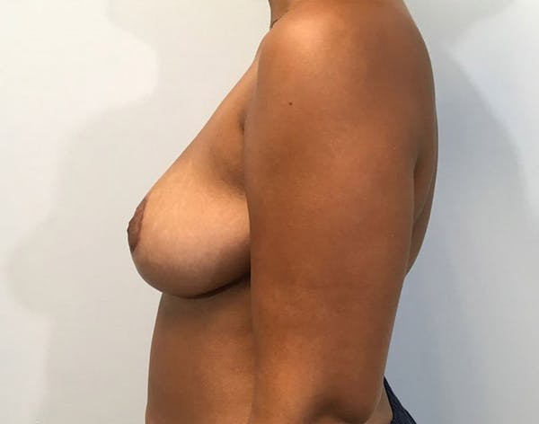 Breast Reduction Gallery - Patient 4930554 - Image 4