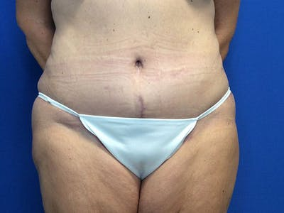 Tummy Tuck (Abdominoplasty) Gallery - Patient 4931635 - Image 2