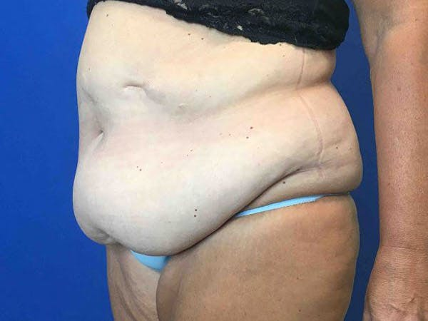 Tummy Tuck (Abdominoplasty) Gallery - Patient 4931635 - Image 3