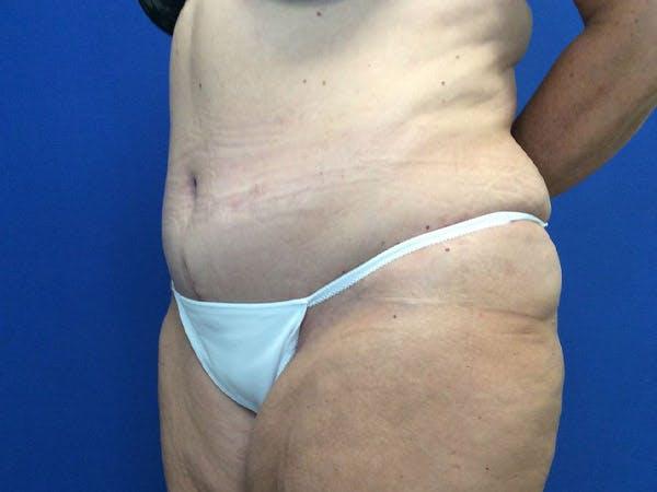 Tummy Tuck (Abdominoplasty) Gallery - Patient 4931635 - Image 4