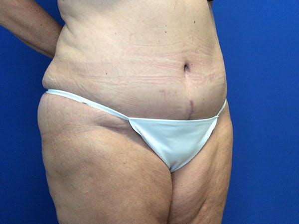 Tummy Tuck (Abdominoplasty) Gallery - Patient 4931635 - Image 6
