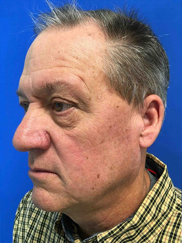 Blepharoplasty Gallery - Patient 5040065 - Image 3