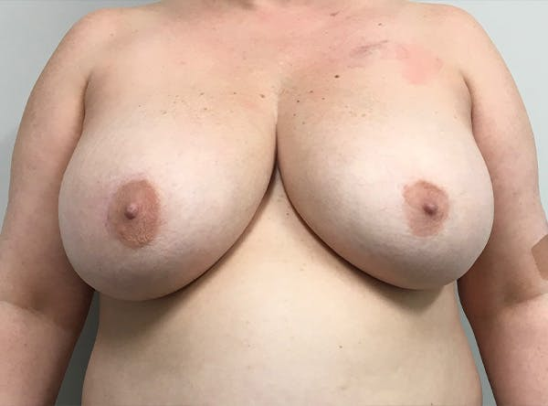 Breast Implant Reconstruction Gallery - Patient 5063356 - Image 1