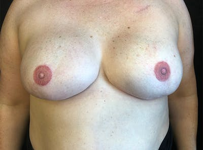 Breast Implant Reconstruction Gallery - Patient 5063356 - Image 2