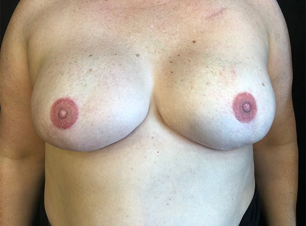 Implant Reconstruction Gallery - Patient 5063356 - Image 2