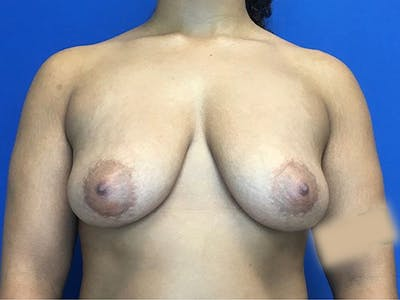 Breast Augmentation Gallery - Patient 5069143 - Image 1