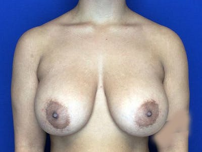 Breast Augmentation Gallery - Patient 5069143 - Image 2