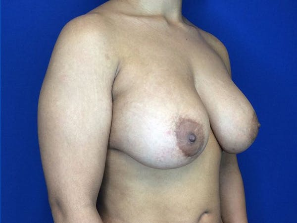Breast Augmentation Gallery - Patient 5069143 - Image 4