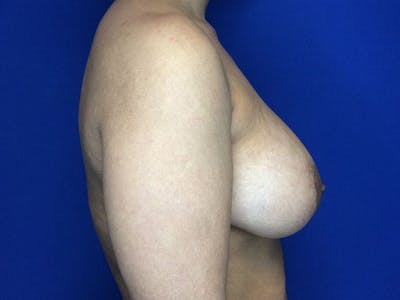 Breast Augmentation Gallery - Patient 5069143 - Image 6
