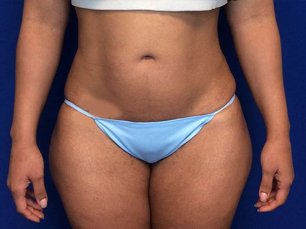 Liposuction Gallery - Patient 5069175 - Image 2
