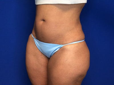 Liposuction Gallery - Patient 5069175 - Image 4