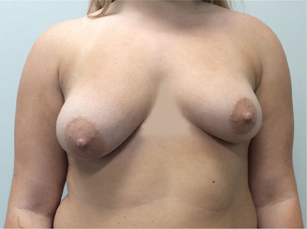 Mastopexy Gallery - Patient 5092295 - Image 18