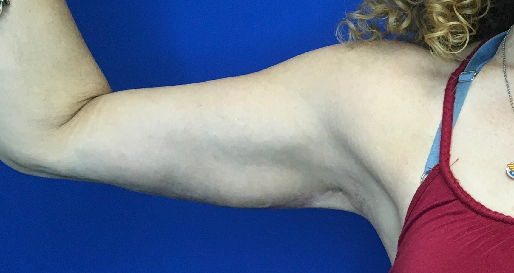 Arm Lift Gallery - Patient 5113285 - Image 2