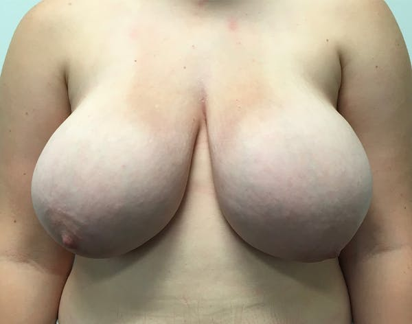 Breast Reduction Gallery - Patient 5147865 - Image 1