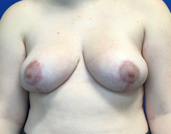 Breast Reduction Gallery - Patient 5147865 - Image 2