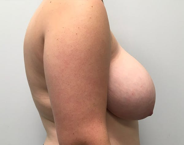 Breast Reduction Gallery - Patient 5147865 - Image 3