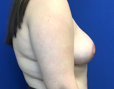 Breast Reduction Gallery - Patient 5147865 - Image 4