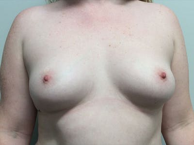 Breast Augmentation Gallery - Patient 5188130 - Image 1