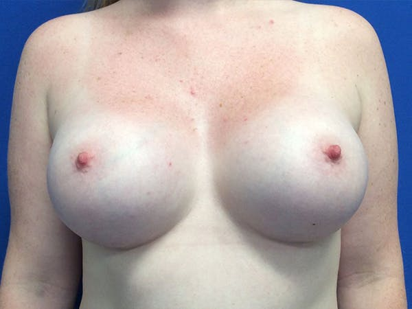 Breast Augmentation Gallery - Patient 5188130 - Image 2