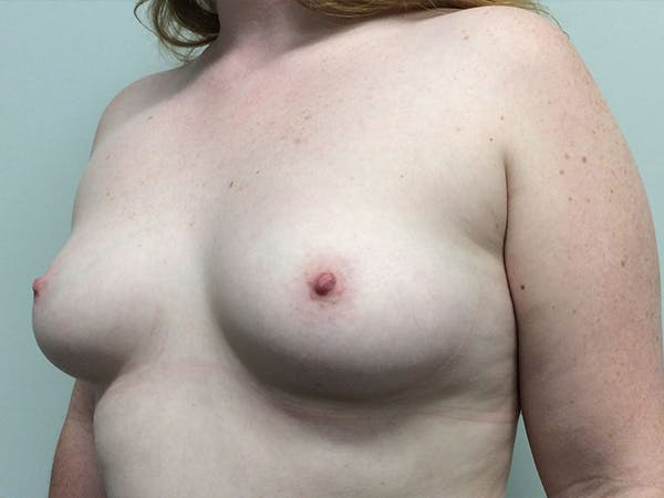 Breast Augmentation Gallery - Patient 5188130 - Image 3