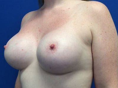 Breast Augmentation Gallery - Patient 5188130 - Image 4