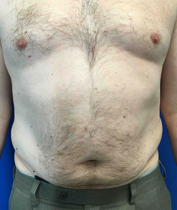 Liposuction Gallery - Patient 5555905 - Image 1