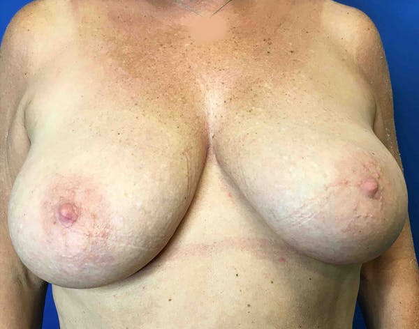 Breast Reduction Gallery - Patient 5724810 - Image 1