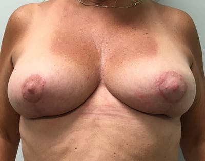 Breast Reduction Gallery - Patient 5724810 - Image 2