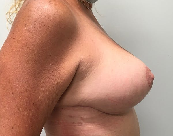 Breast Reduction Gallery - Patient 5724810 - Image 4