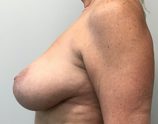 Breast Reduction Gallery - Patient 5724810 - Image 5