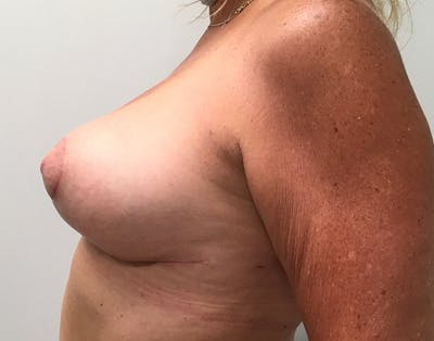 Breast Reduction Gallery - Patient 5724810 - Image 6