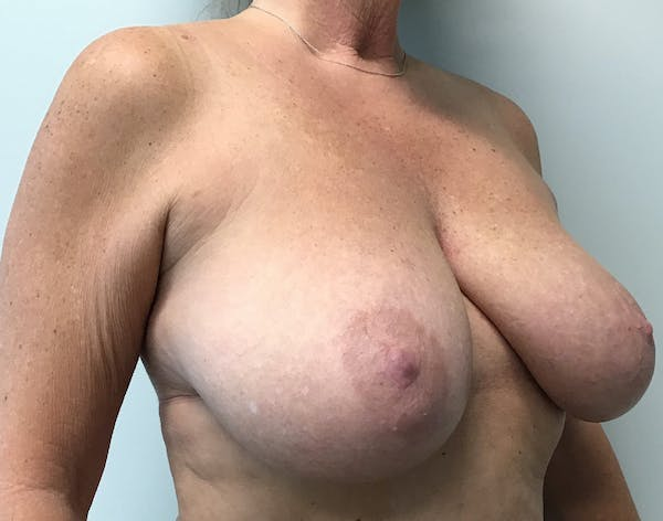 Breast Reduction Gallery - Patient 5724810 - Image 7