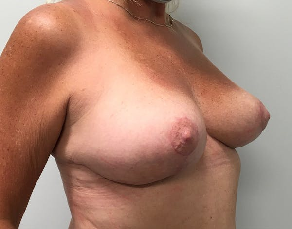 Breast Reduction Gallery - Patient 5724810 - Image 8