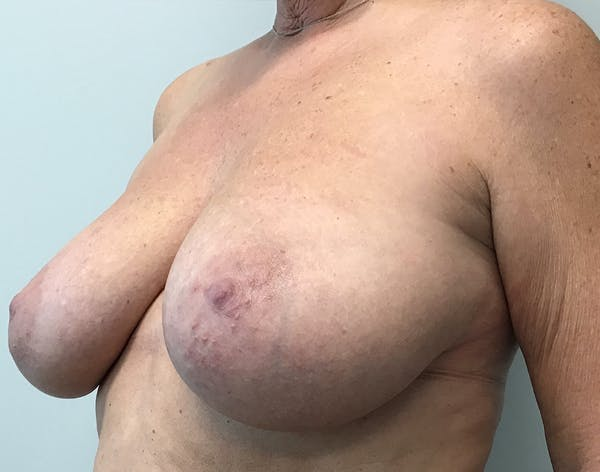 Breast Reduction Gallery - Patient 5724810 - Image 9