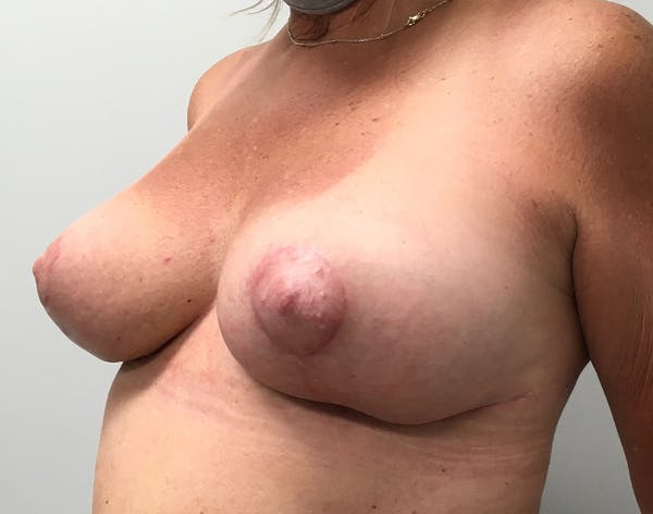 Breast Reduction Gallery - Patient 5724810 - Image 10