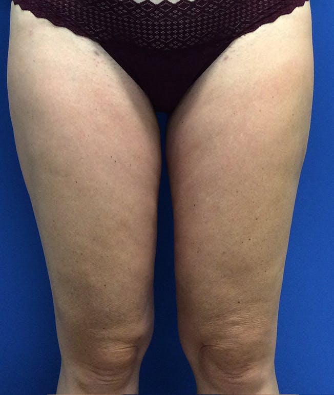 Liposuction Gallery - Patient 5910742 - Image 2