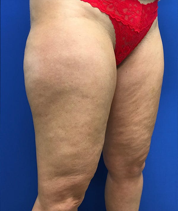 Liposuction Gallery - Patient 5910742 - Image 3