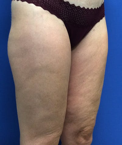 Liposuction Gallery - Patient 5910742 - Image 4