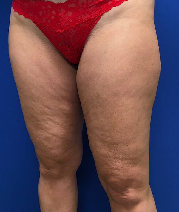 Liposuction Gallery - Patient 5910742 - Image 5