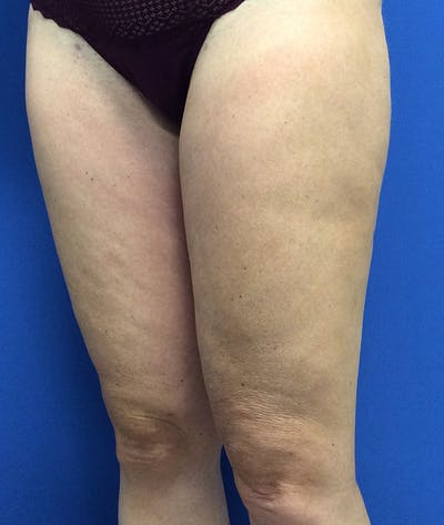 Liposuction Gallery - Patient 5910742 - Image 6