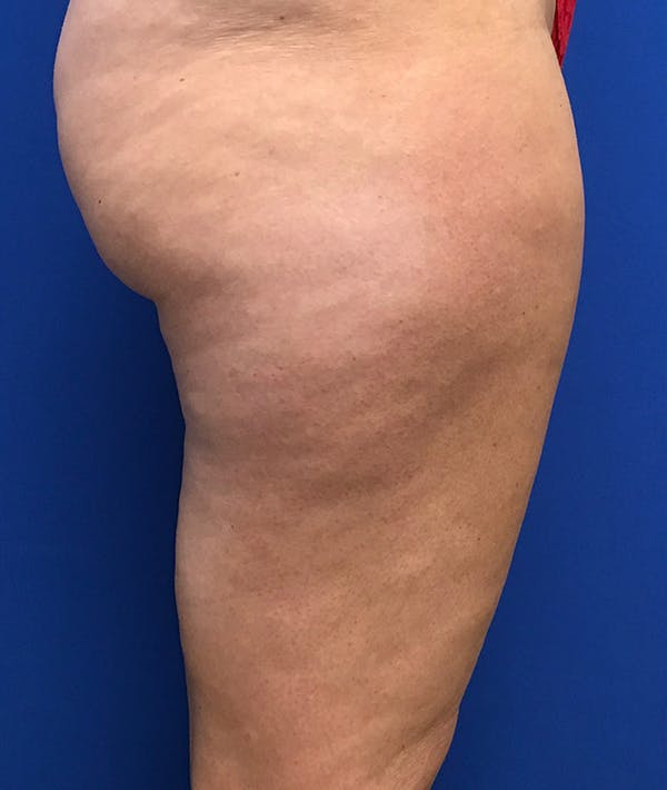 Liposuction Gallery - Patient 5910742 - Image 7