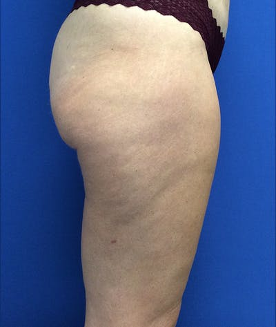 Liposuction Gallery - Patient 5910742 - Image 8