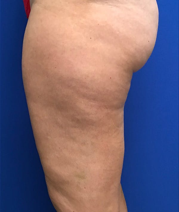 Liposuction Gallery - Patient 5910742 - Image 9