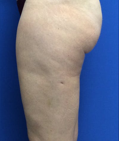 Liposuction Gallery - Patient 5910742 - Image 10