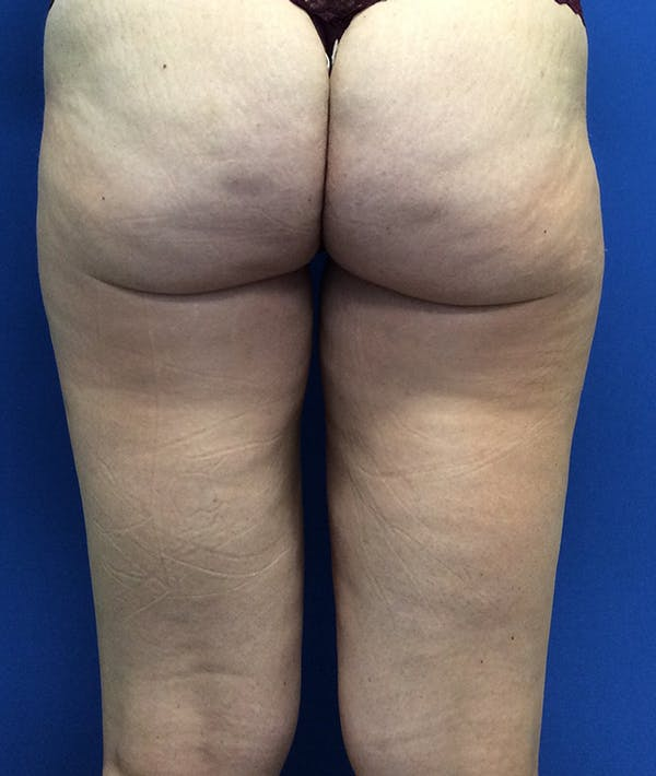 Liposuction Gallery - Patient 5910742 - Image 12