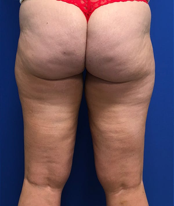 Liposuction Gallery - Patient 5910742 - Image 11