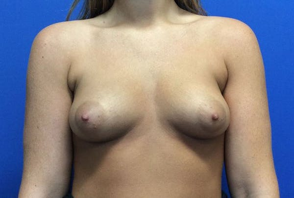 Breast Augmentation Gallery - Patient 4594837 - Image 1