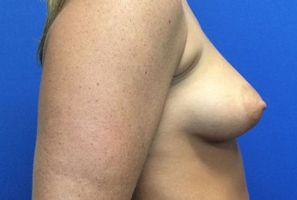 Breast Augmentation Gallery - Patient 4594837 - Image 5