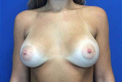 Breast Augmentation Gallery - Patient 4594837 - Image 2