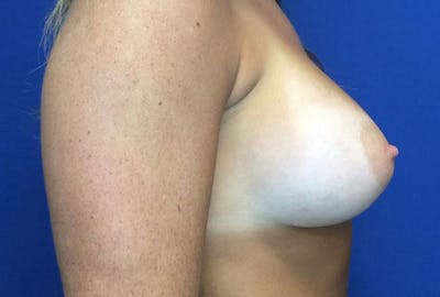 Breast Augmentation Gallery - Patient 4594837 - Image 6